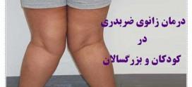 درمان زانوی ضربدری در کودکان