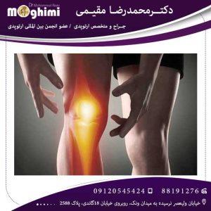 درمان-آرتروز