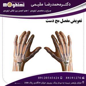 تعویض-مفصل-مچ-دست