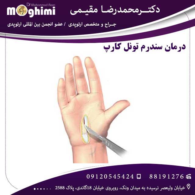درمان-سندرم-تونل-کارپ