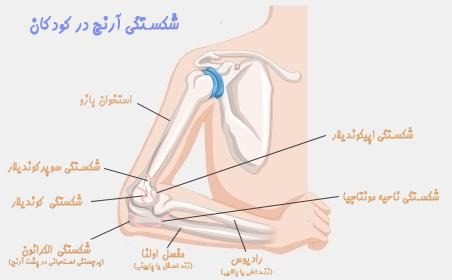 انواع شکستگی آرنج در کودکان