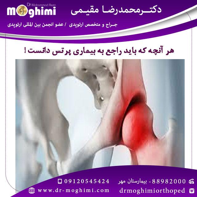 بیماری پرتس - دکتر محمدرضا مقیمی